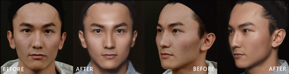 正面臉左右明顯凹陷,看起來輪廓導致臉看起來比較大,側臉經盧靜怡院長利用玻尿酸修飾後,線修變的更順,當然凹陷也變豐潤了。