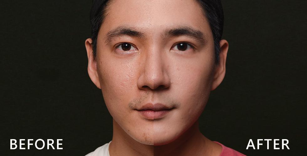 陳清筠醫師說我的皮膚狀況都蠻好的,因為我最在意的是毛孔粗大跟痘疤問題,所以陳醫師也特別針對我的臉部T字部位做加強。效果真的差異很大。