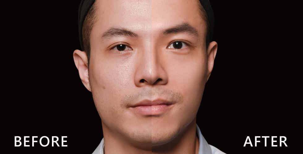 療程後的我毛孔真的明顯改善很多