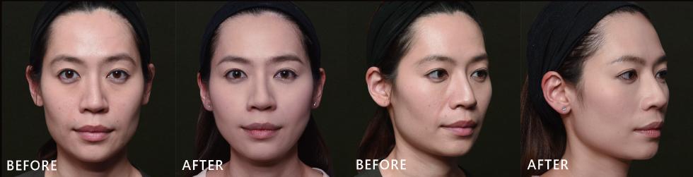 ▲五官沒有改變太多,但因為利用玻尿酸苦命的凹臉就不見了;看起來有精神且柔順很多