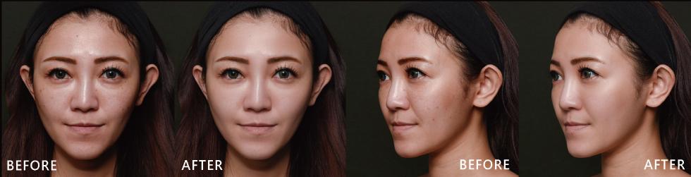 以前的素顏感覺很暗沉也比較沒精神,但治療後明顯感受到自己素顏也自帶光芒的感覺,皮膚很透亮。