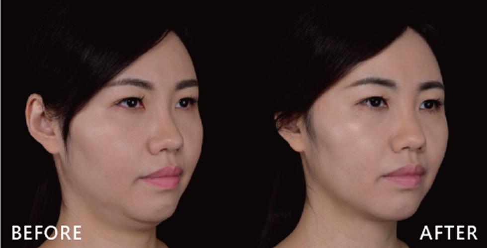 治療前明明沒低頭,雙下巴一樣出來見客,治療後明顯的看出雙下巴消失了,顯得下顎輪廓比較明顯。
