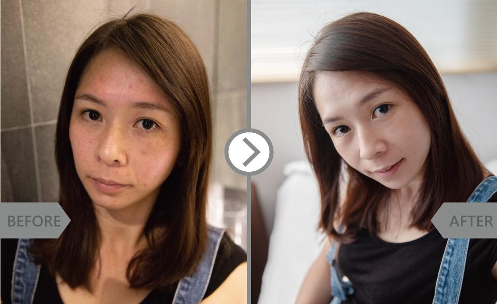 原本還真是小花臉,因為過敏又有斑點,做完MSA酸之後真的是光滑很多。再加上粉刺清乾淨,也比較沒那麼多痘痘了。