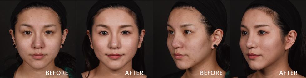 術後回診時,看到自己的差別真的很開心,尤其兩頰的紅豆疤改善不少,我自也明顯感受到上妝不用蓋很厚就可以遮住這些缺點了。