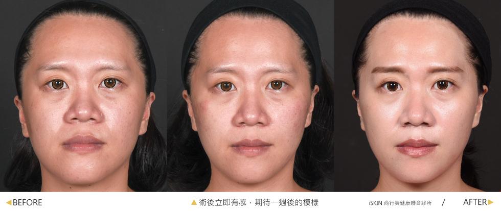 陳醫師用了2cc的玻尿酸替我做到了蘋果肌的填補、中頰的拉提,改善了我單邊的法令紋問題,使我的兩臉更對稱協調。