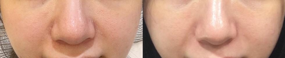 剛打完4D皮秒雷射跟打前比較,療程後毛孔真的有比較小了。之後把4D皮秒雷射當成保養皮膚的療程,相信過不久我也能夠擁有無瑕蛋殼肌囉~