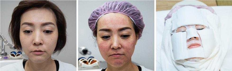 施打完4D皮秒雷射後臉部會些許紅腫,經過iSKIN術後護理,回家時就會退紅。