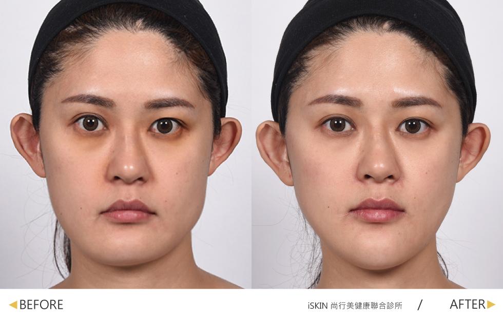 玻尿酸與除皺瘦臉針療程結束後,子瑩的臉退去疲憊,不只顯得精神許多,五官也更加立體。