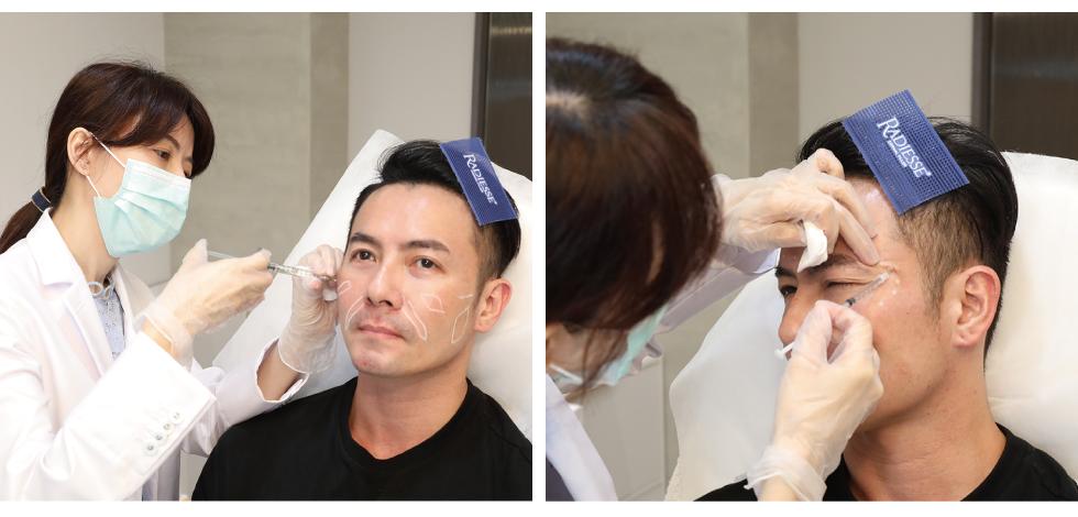經過與林君曄醫師討論,開始臉部許多部位的玻尿酸與除皺瘦臉針治療。