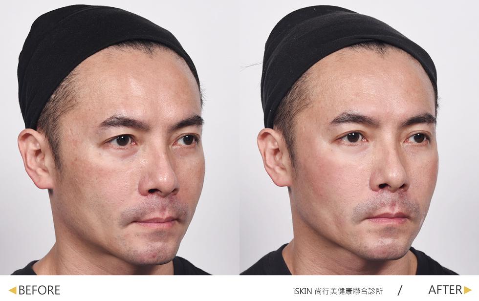 經過玻尿酸與除皺瘦臉針治療,讓我的淚溝不見了及中臉的輪廓線拉提線修及立體柔。