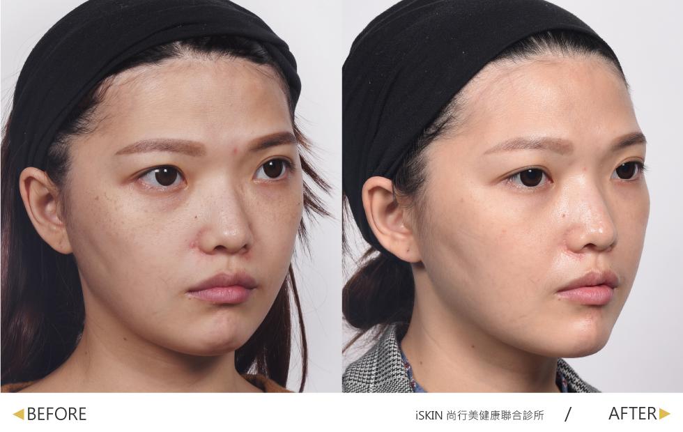 脈衝光針對雙頰與鼻上的色素沉澱、淺層斑點與微血管作改善;飛梭雷射則加速皮膚代謝能力,改善老化鬆弛型的毛孔粗大,使肌膚回春