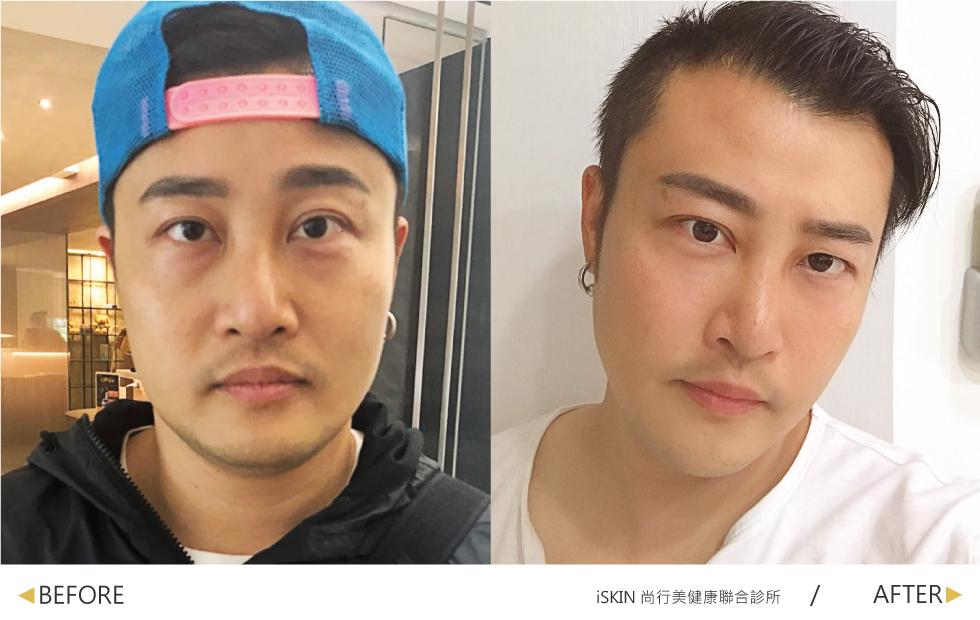 經過林君曄醫師的玻尿酸與除皺瘦臉針治療,我的淚溝獲得修復,魚尾紋也消失了,整個人看起來像年輕了幾歲!