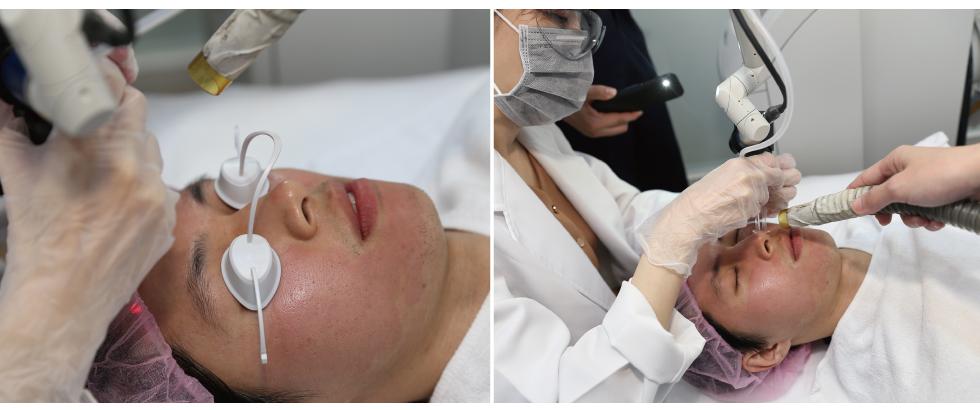 UP雷射真的如醫師事先囑咐的般疼痛,不過同時也讓我覺得有效,療程後臉部雖然紅腫,不過安心按照醫師指導照料,就完全恢復。