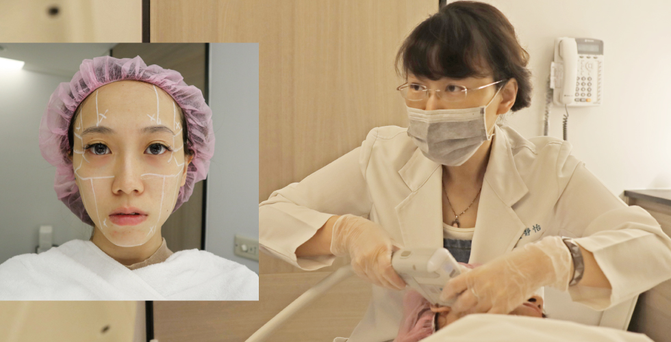 音波拉皮療程時,非常重視療程安全的盧醫師,除了聚精會神觀察即時顯像系統外,還不斷地關心我當下的感覺。另外照片中我的兩頰真的很不對稱(左圖)!