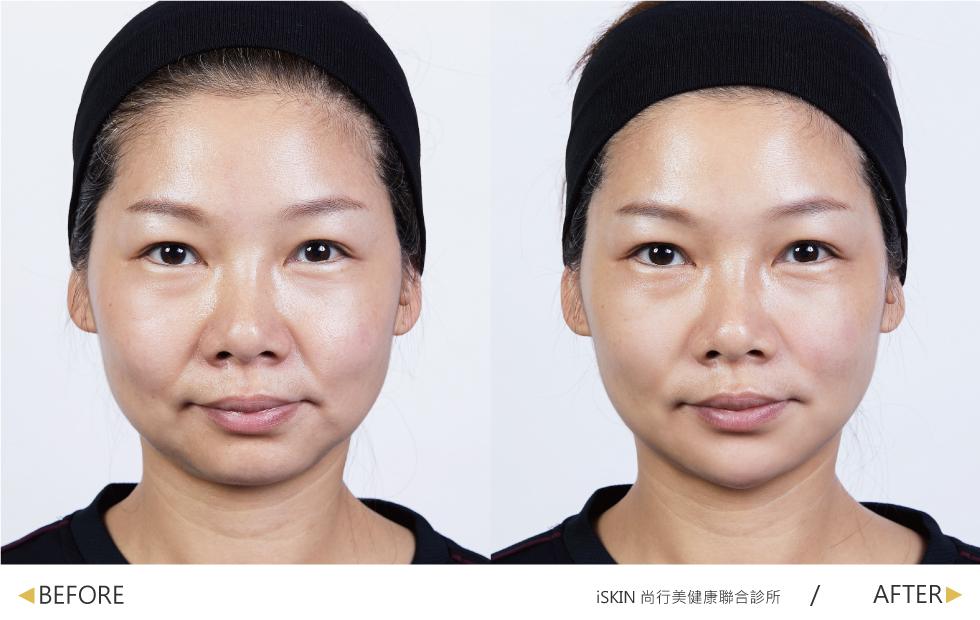 玻尿酸撫平法令紋,讓我看起來更加年輕;也拉長下巴,使輪廓感覺更柔和。