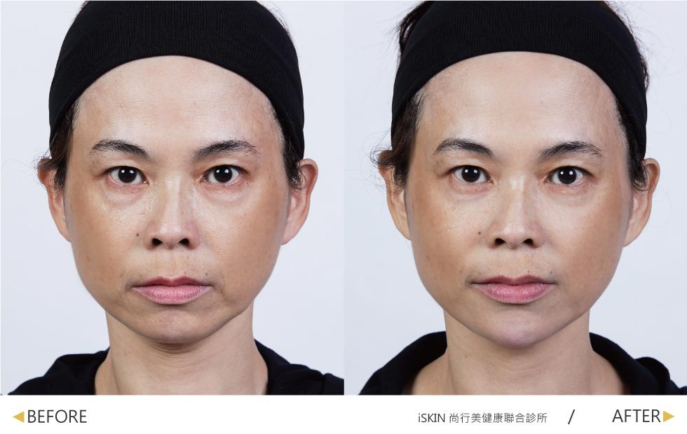 下巴處在玻尿酸治療前,下顎兩側凹陷與木偶紋較為明顯,且下巴較短。