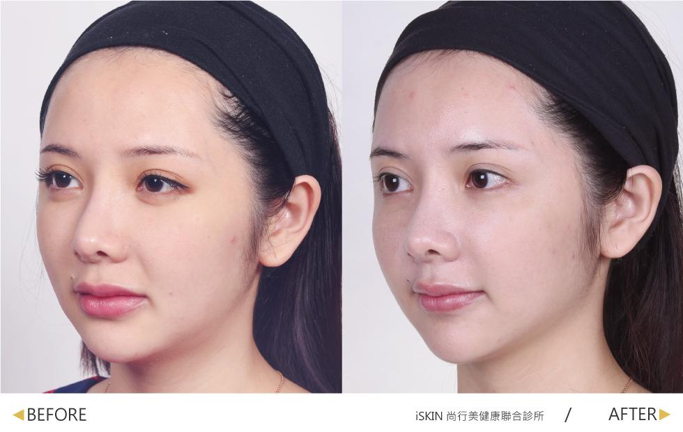 最在意的法令紋與肌膚鬆垮,經過盧醫師的電波拉皮治療後,緊緻度UP,蘋果肌感覺更澎潤,膚色也明顯提亮了!
