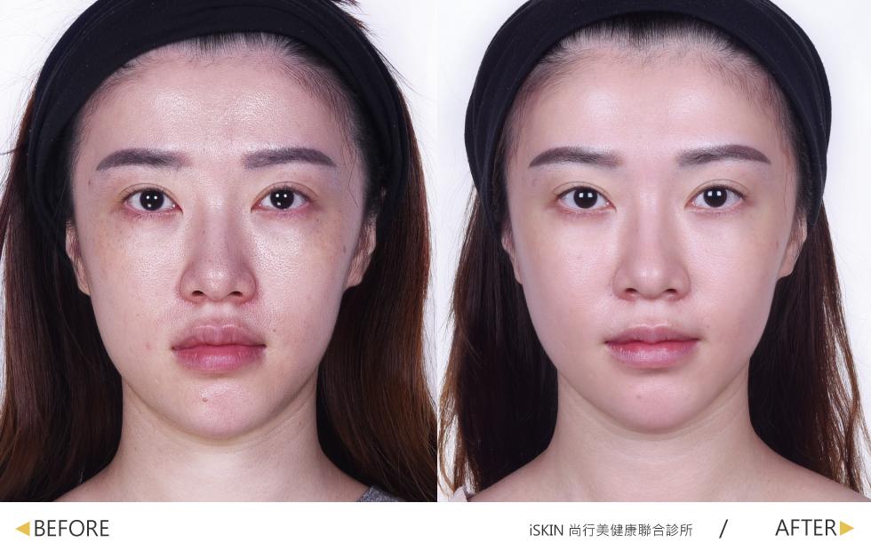 皮秒雷射療程結束後,肌膚真的超級光滑明亮,額頭也微微發亮呢,整體的膚色也變的很均勻呢,真的很推薦!