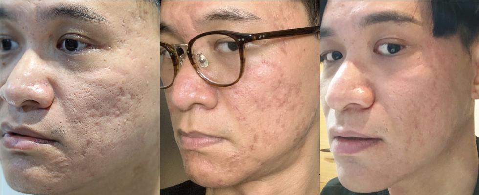 左邊第一張,是我第一次做UP雷射前拍的;中間是UP雷射之後的二天,皮膚表面傷口還有些結痂;最右邊是皮秒雷射+波尿酸填補痘疤較深的部位術後。診所的醫師跟護士還有化妝師都說,我的皮膚進步許多。(照片-個人臉書)