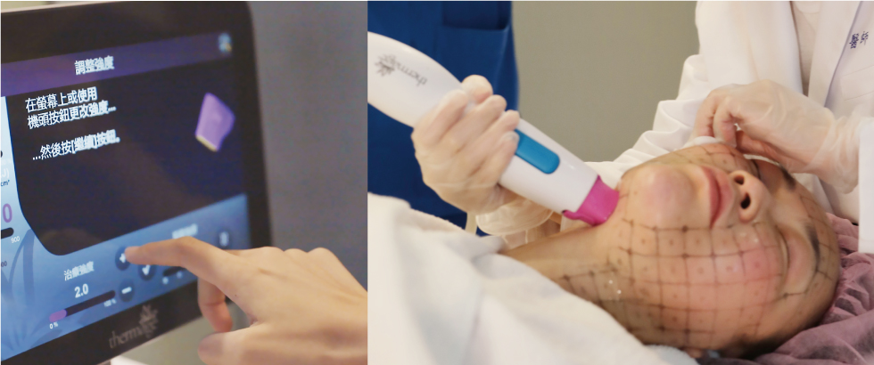 開始啟動鳳凰電波療程~觸碰式螢幕搭配全新進化的智慧能量優化技術,讓醫師能更精準給與肌膚適合的治療能量。