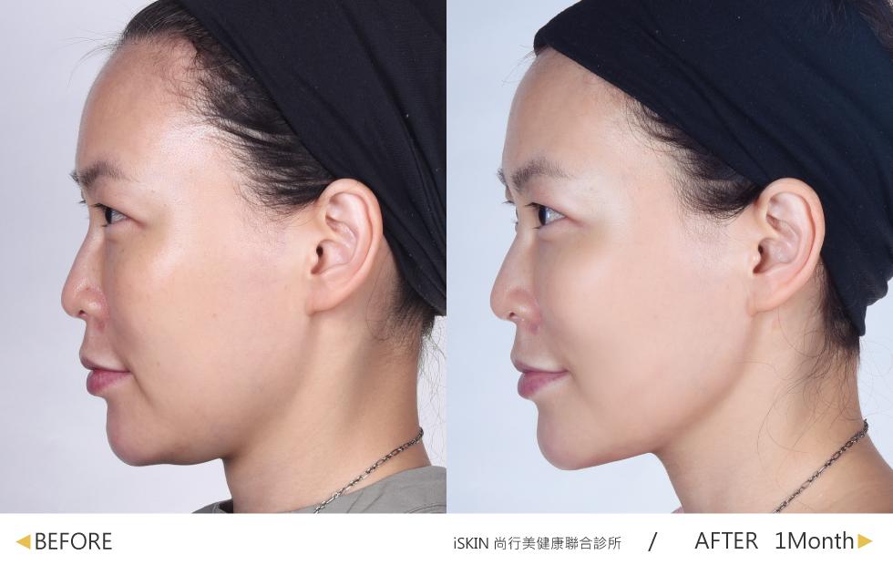 鳳凰電波讓顏值大扣分的雙下巴消失~以精準的能量拉提下顎線部位,持續維持V曲線。