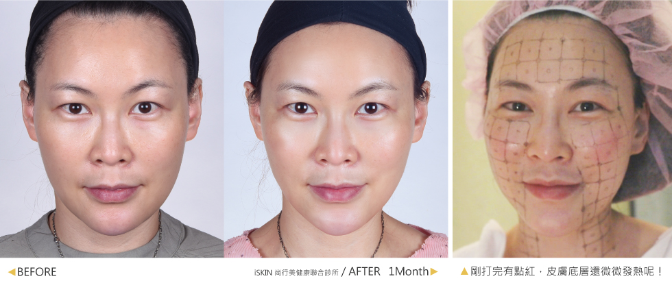 我個人是覺得有些部位會有微熱感產生,過程整體來說是很舒適的!剛打完臉部線條會有瞬間V臉的感覺,我相信一個月後這個效果會更加傑出!大家一起拭目以待吧~圖中是術後一個月,感覺臉部輪廓明顯更緊緻立體,雙眼也變更有神;小V臉曲線回來了,視覺年齡輕鬆-10歲。