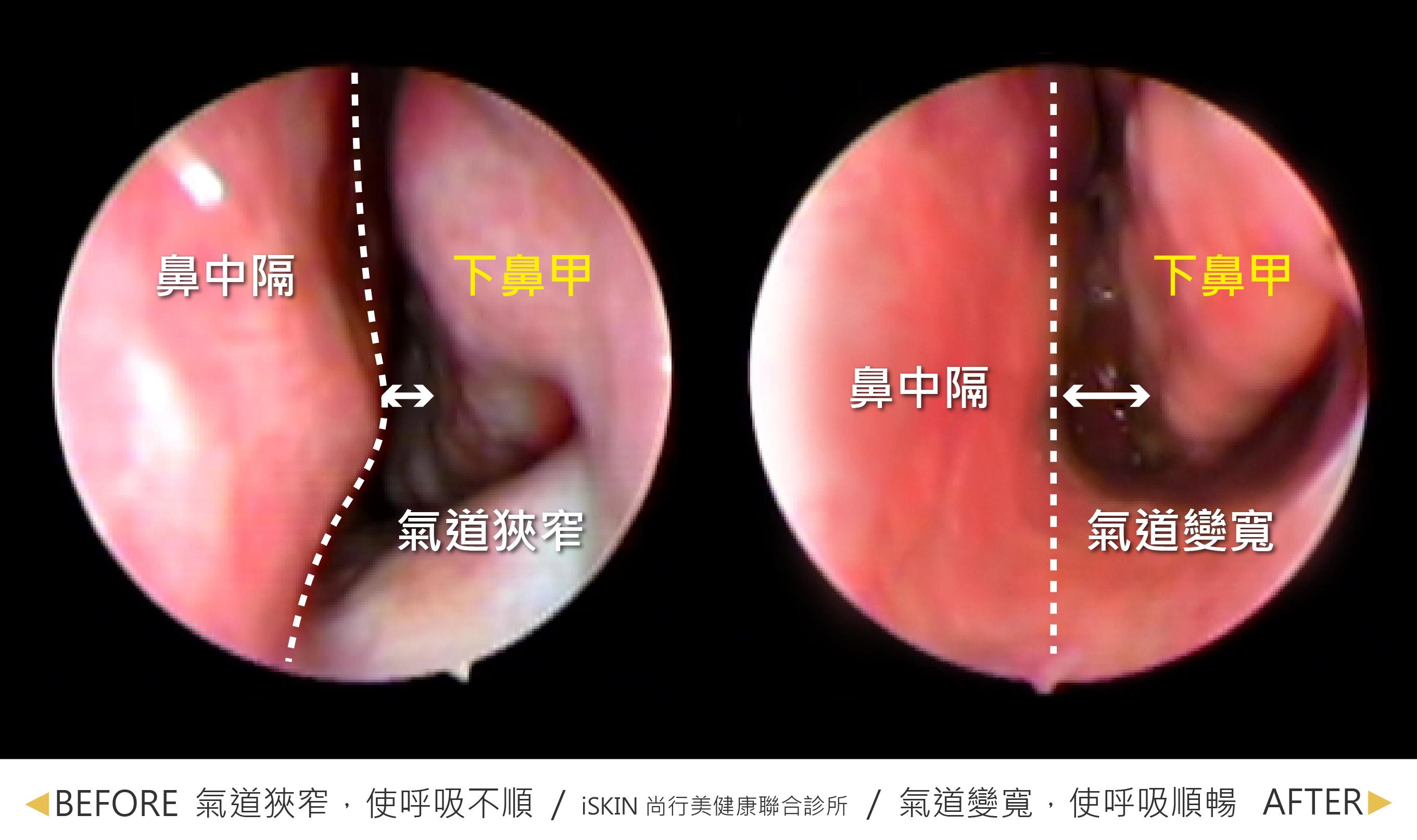 在廣達光纖雷射+鼻中隔彎曲治療後,下鼻甲體積縮小以及鼻中膈變直做改善,氣道變寬,呼吸也更順暢。