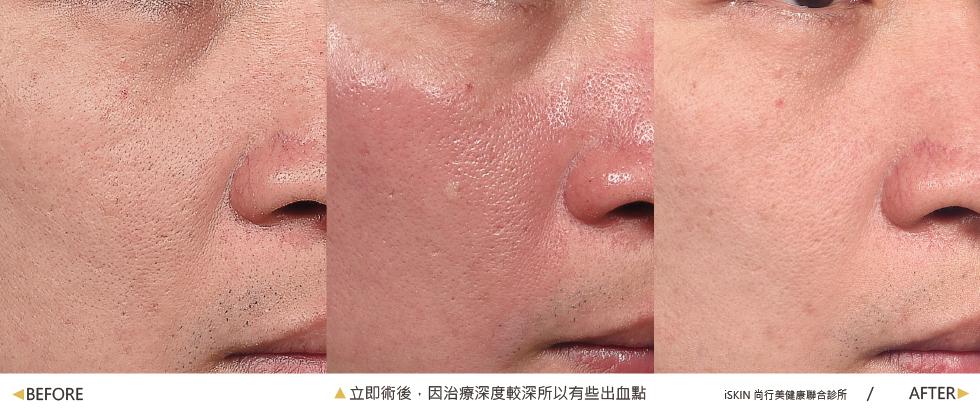 診所很細心幫我拍了照片做紀錄,治療前後毛孔與肌膚細緻度真的差很多!