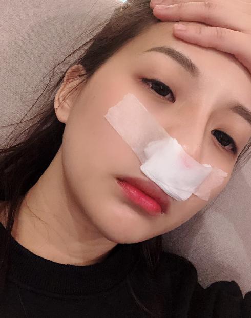 會貼紗布在鼻孔,防止流出來的分泌物沾到衣服