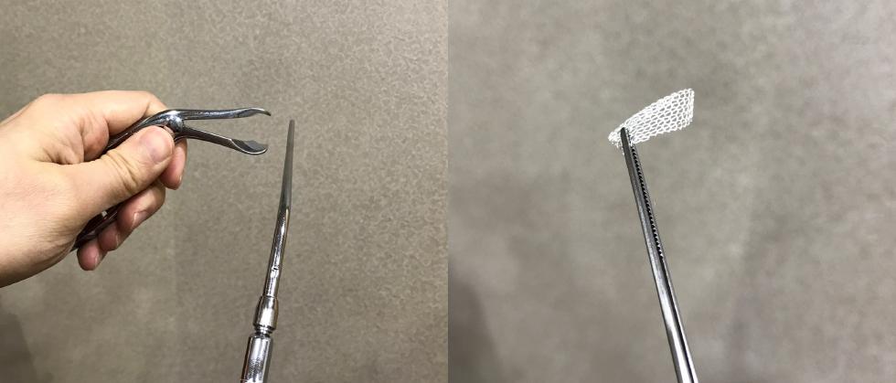 左圖:醫師會用鉗子撐開鼻子,用吸引管清理術後分泌物與碎化的止血棉  右圖:接著為了預防出血,所以會貼上這層薄薄的止血敷料(Surgicel)