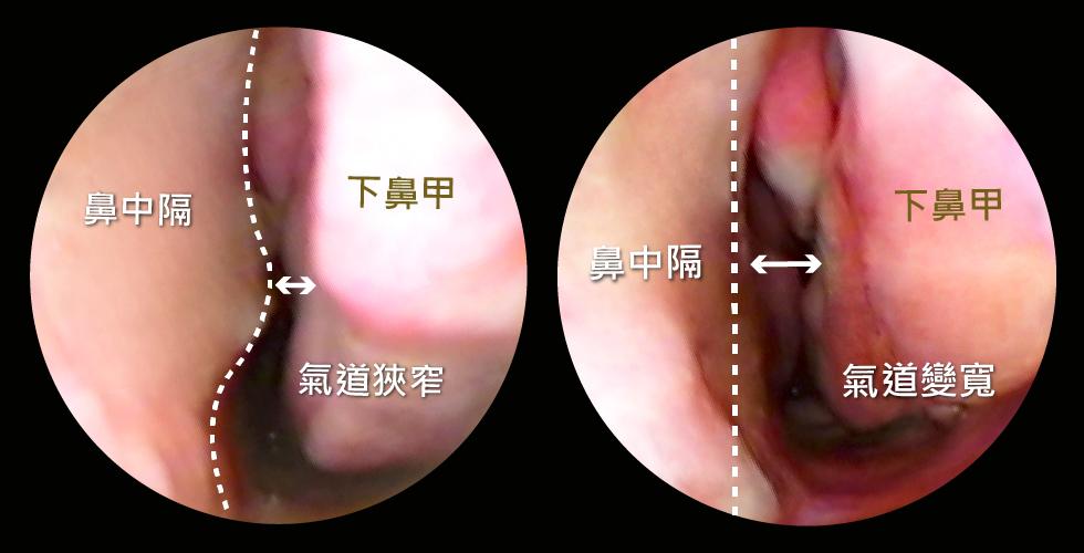 手術前左圖: 透過鼻腔內視鏡檢查,可以看出鼻中隔彎曲及下鼻甲肥厚的症狀,鼻道空間很狹窄,難怪我常鼻塞QQ   手術後右圖: 經過治療後,下鼻甲體積縮小了,鼻中隔不再彎曲,鼻道空間變寬了,呼吸順暢到不行!