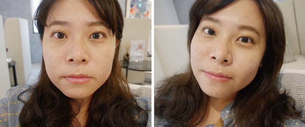 施打完音波拉提當天的樣子,期待療程後臉越來越V