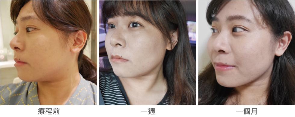 超滿意的側臉比較,有了下顎線臉看起來瘦好多