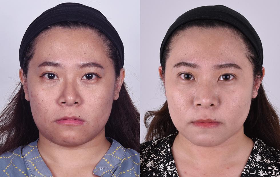 術前 / 術後,臉有變小一點,但側臉讓我更驚喜~