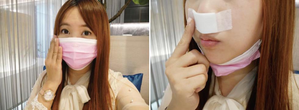 現在剛好大家因為疫情戴口罩,自己看起來就不會那麼奇怪~哈。